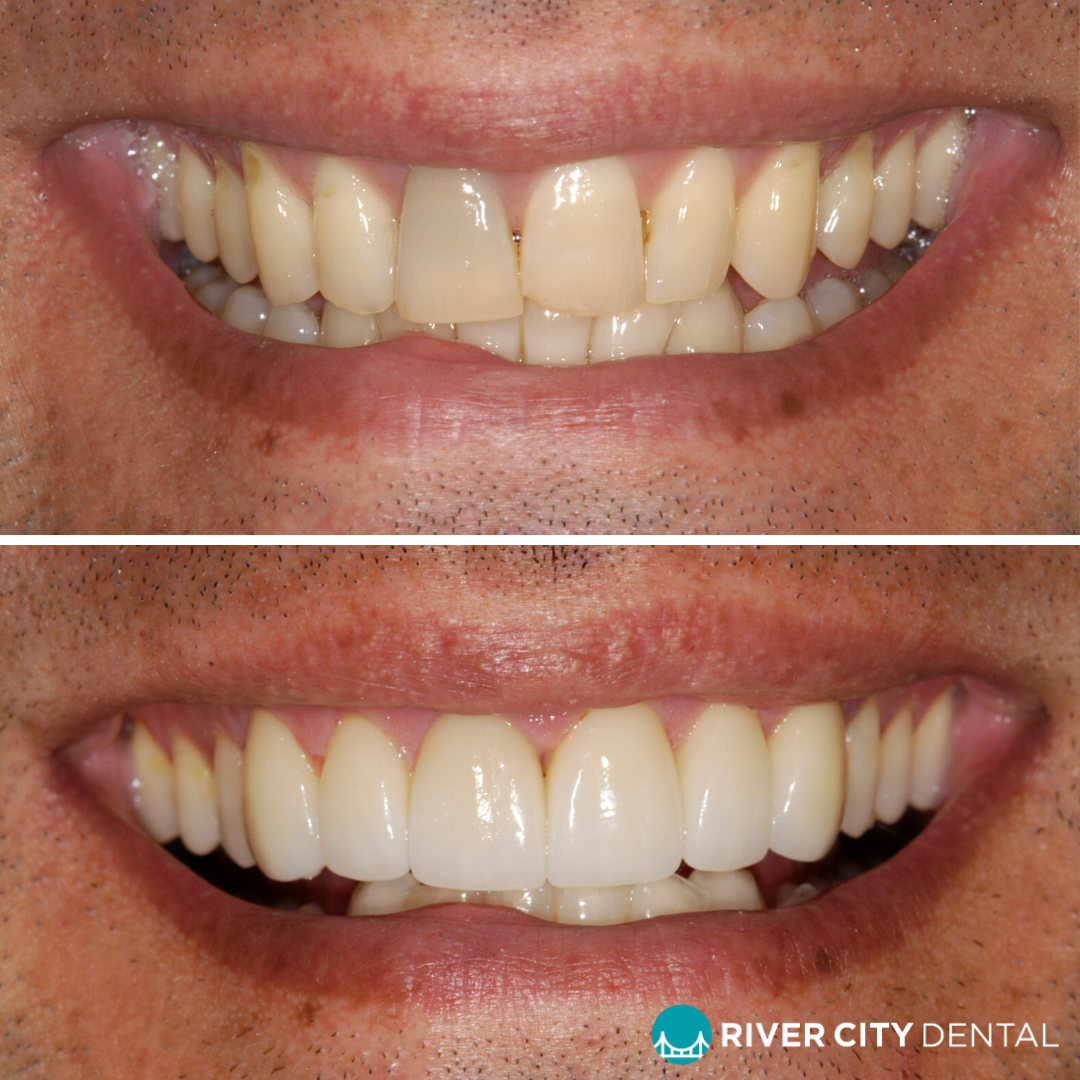 Brisbane dental veneers River CIty Dental
