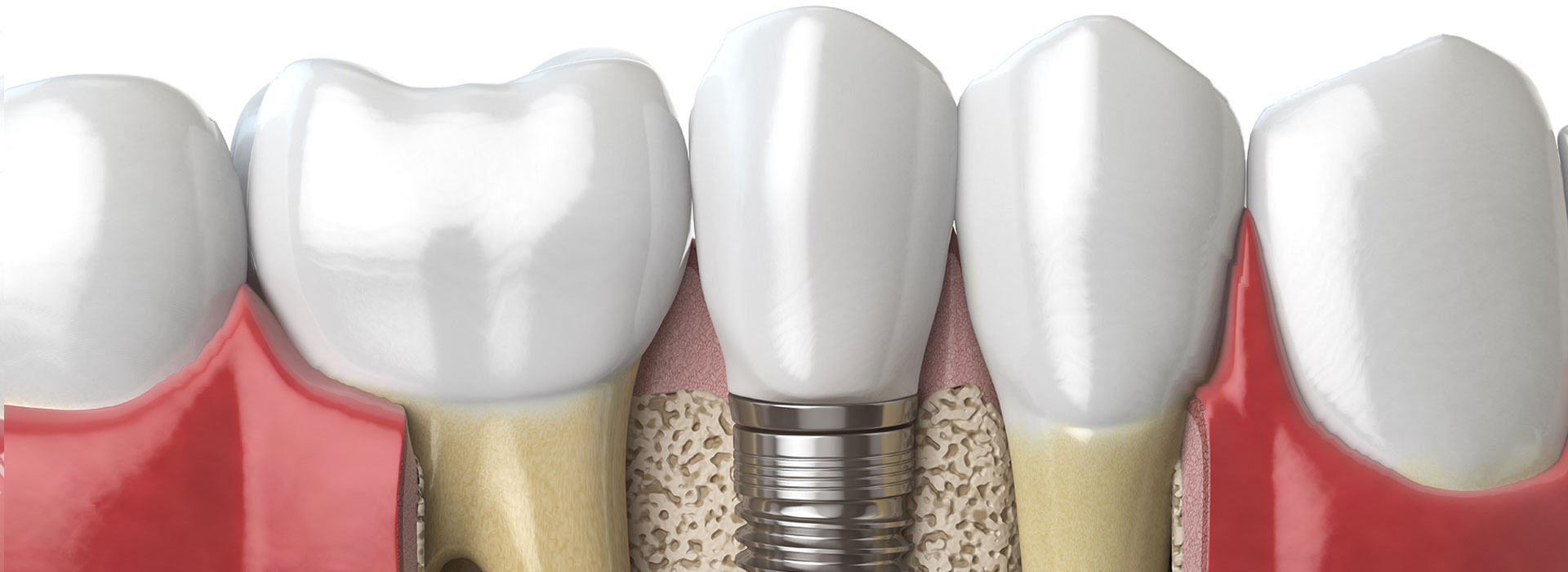 Brisbane dental implants River CIty Dental