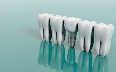 Dental Implants: Explained by Our Team