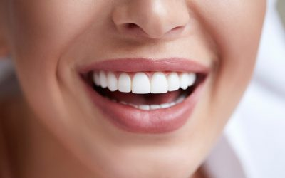 Should You Get Dental Veneers?