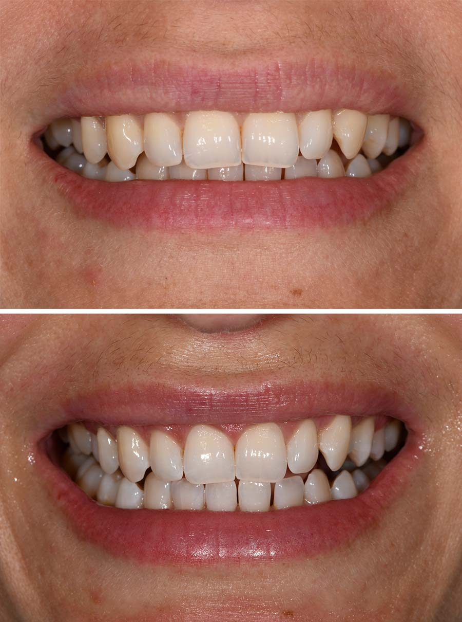 Brisbane teeth whitening River City Dental