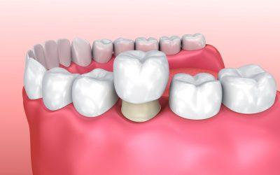 Dental Crowns Indooroopilly
